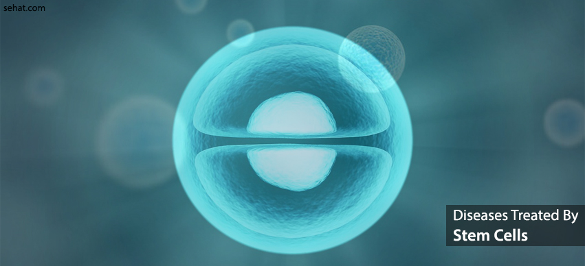 List of Diseases Treated By Stem Cells