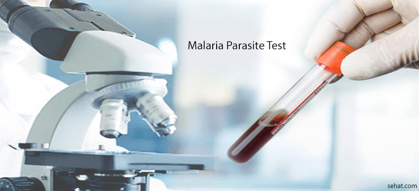 Malaria Parasite Test Procedure, Principle, Results Interpretation