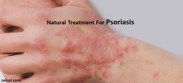 Natural Treatment And Home Remedies For Psoriasis