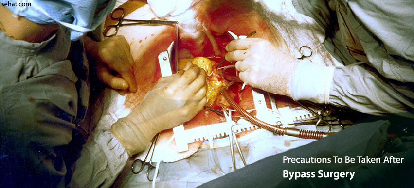 Precautions To Be Taken After Bypass Surgery