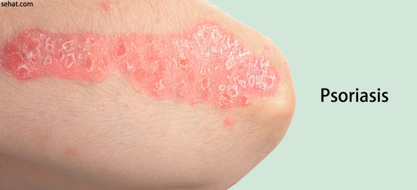 Psoriasis - What You Need to Know