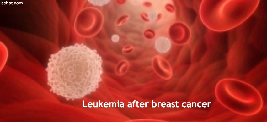 Risk Factors for Leukemia After Breast Cancer