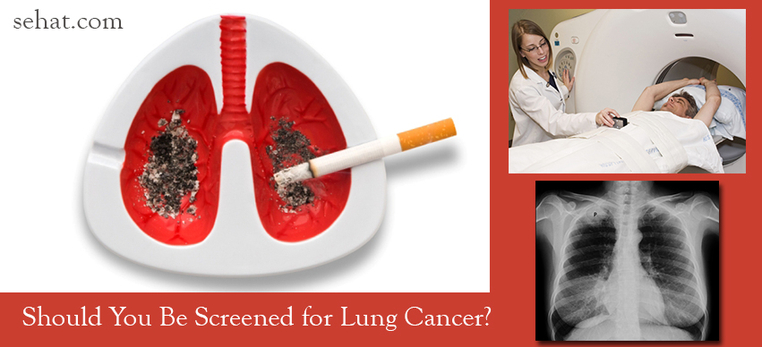 Should You Be Screened for Lung Cancer?