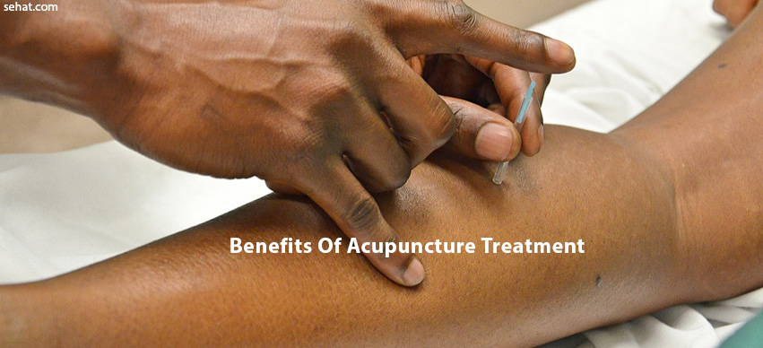 Top 4 Benefits To Investing In Acupuncture Treatments