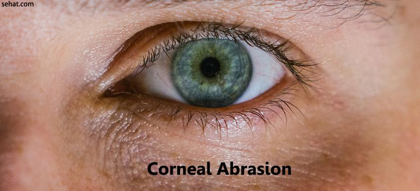 Top 10 Home Remedies for Corneal Abrasion