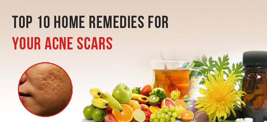 Top 10 Home Remedies For Your Acne Scars