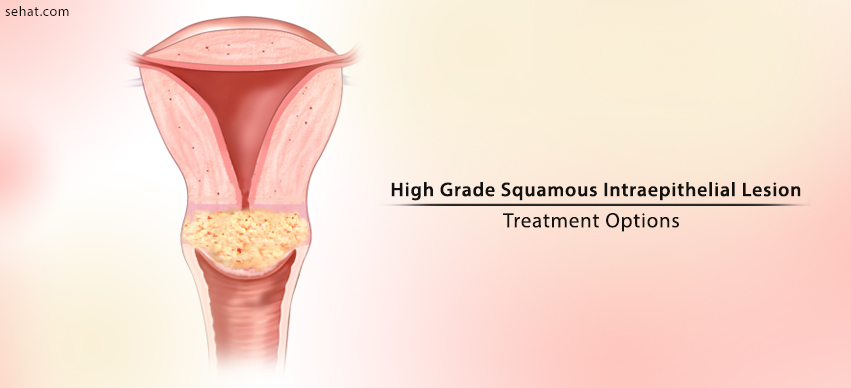 Treatment Options For High Grade Squamous Intraepithelial Lesion