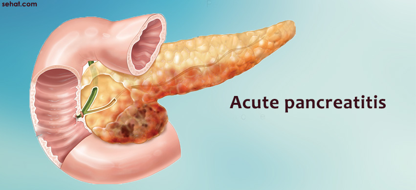 Understanding Acute Pancreatitis Aids in Timely Precautions and Cure