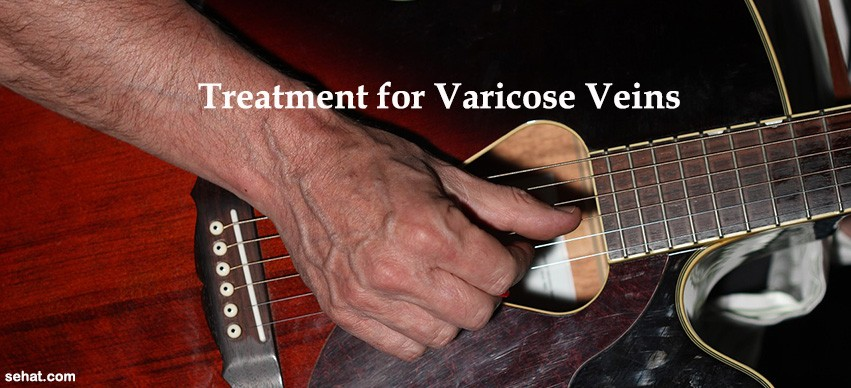 Varicose Veins and Treatments