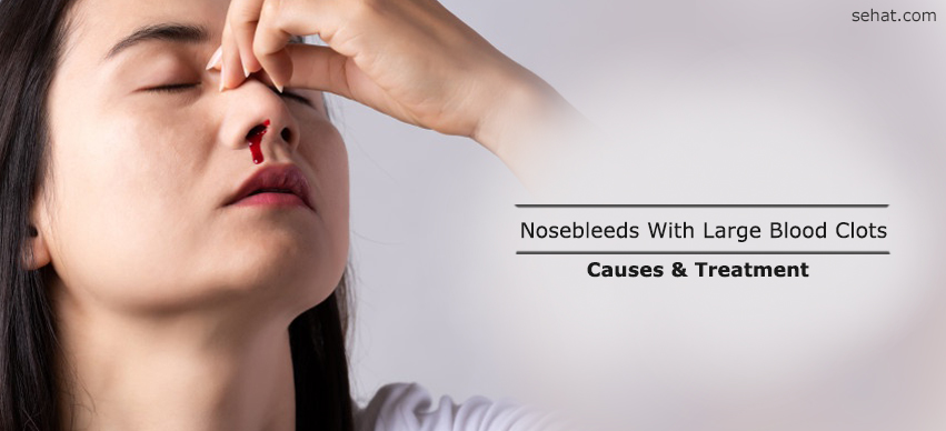 What Causes Nosebleeds With Large Blood Clots?