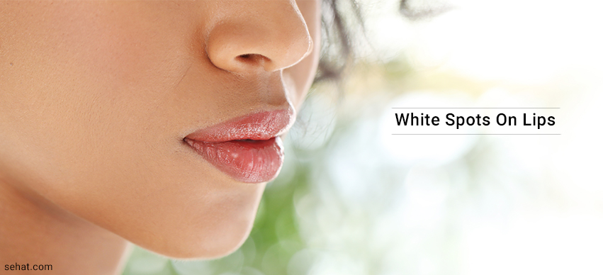 What Causes White Spots On Lips And How To Get Rid?