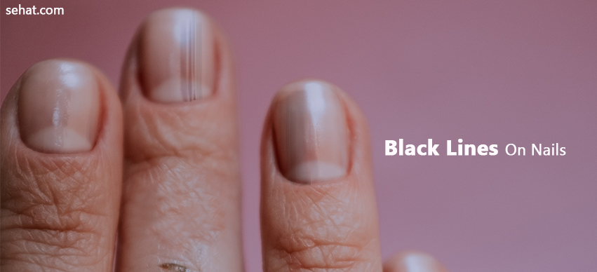 What Does Black Lines On Nails Mean?
