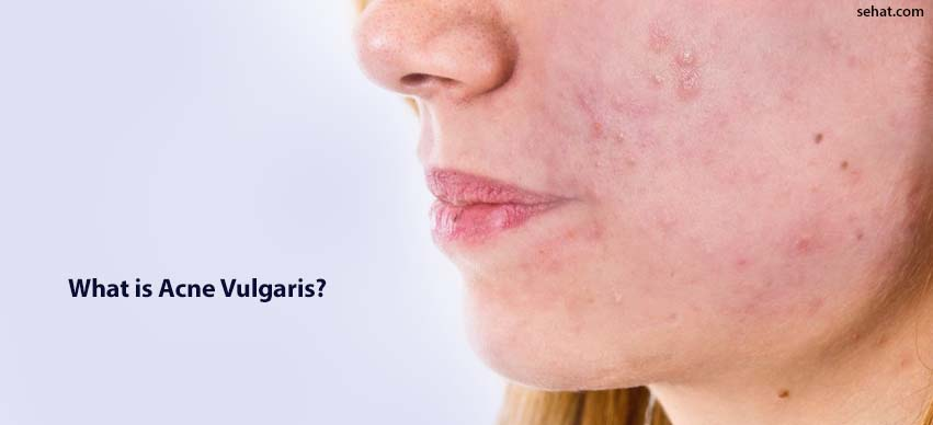 What Is Acne Vulgaris? - Causes And Treatment