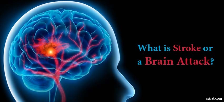 What is Stroke or a Brain Attack?