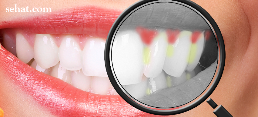 What You Should Know about Gingivitis?