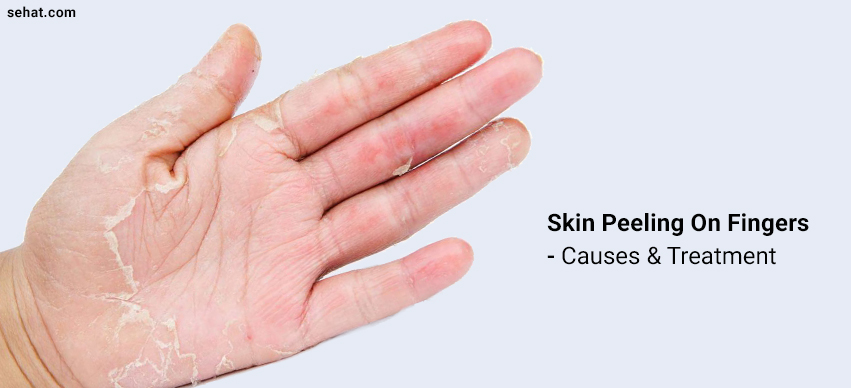 Why Is My Skin Peeling On Fingers And How To Get Rid Of It?