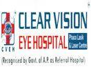 Clear Vision Eye Hospital Hyderabad,