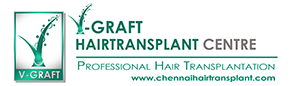 V Graft Hairtransplant