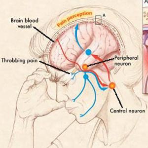 Migraine Caused due to Incomplete Network of Brain Arteries